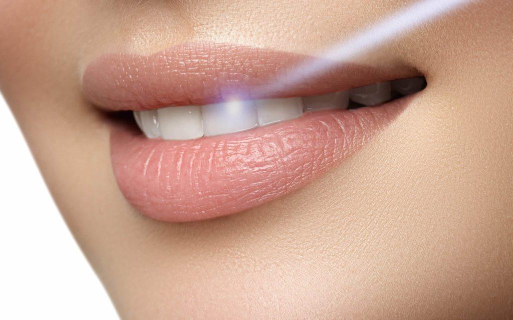 Zahnbehandlung mit Laser