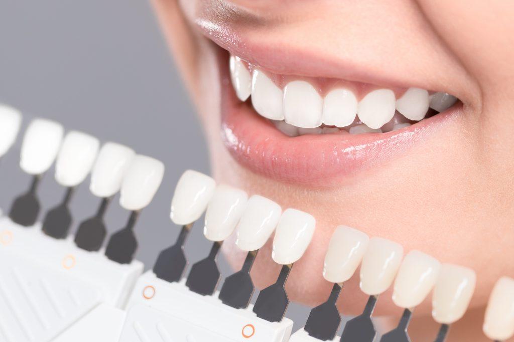 Zähne Bleichen Farbanpassung